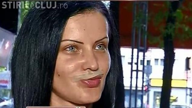 Unui manechin operat în România i-a explodat jumătate de buză. Reconstrucția costă o avere