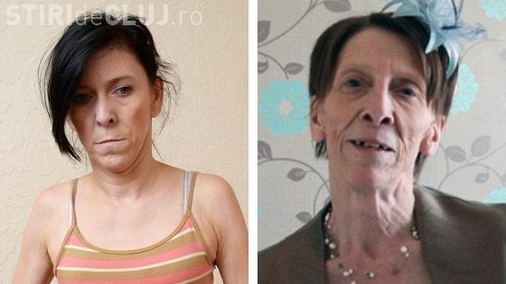 O adolescentă cu chip de bătrână s-a operat pentru a scăpa de batjocura tuturor! Intervenția a costat 60.000 de euro