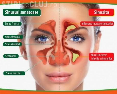 Sinusuri înfundate: Tratamente naturiste simple. Ajută otetul de mere, hreanul, ceapa și usturoiul