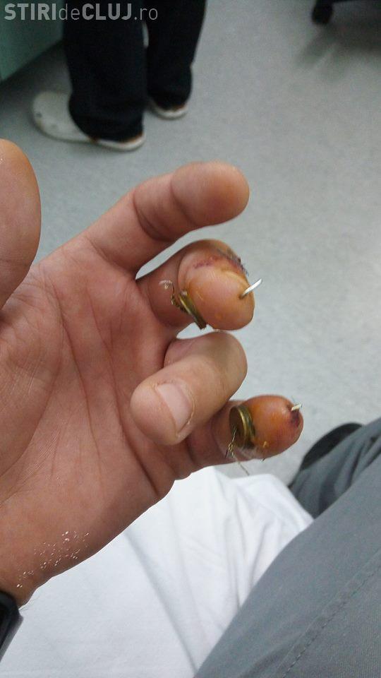 Cluj: Caz ȘOCANT la Spitalul de Recuperare din Cluj. Chirurgul Alexandru Georgescu i-a operat degetul greșit, fără să își dea seama