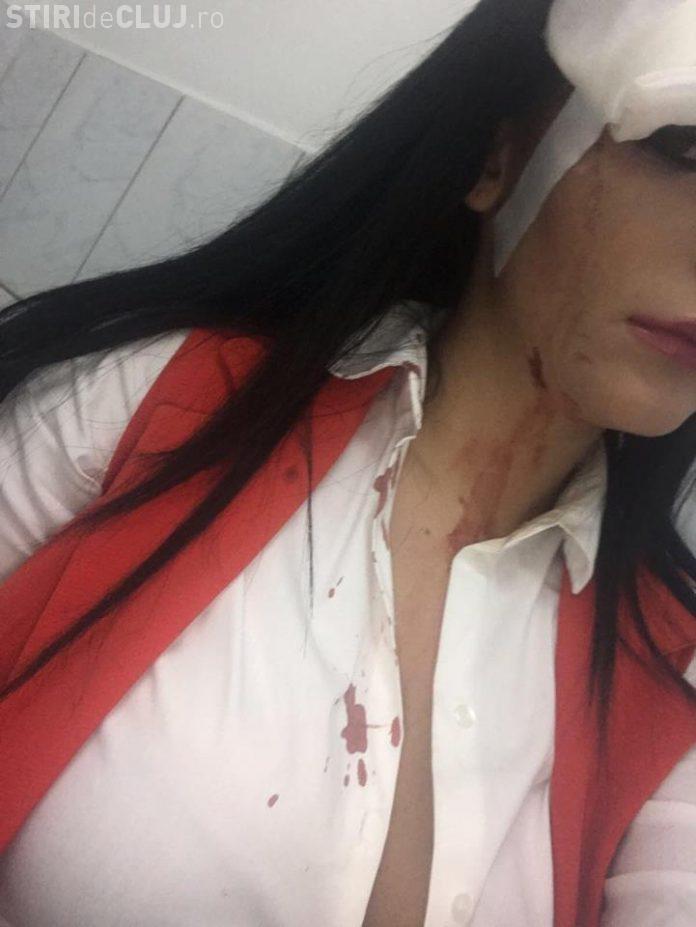 Cluj: Cântăreața Roberta Opre, bătută de grup de luptători MMA