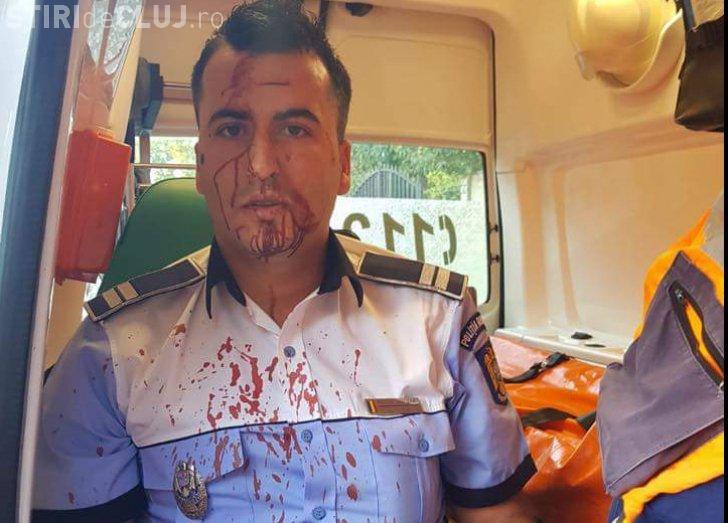 Tupeu de șofer! A bătut crunt un polițist care l-a urmărit în trafic
