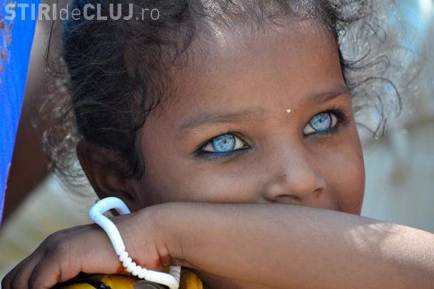 Cei mai frumoși ochi albastri din lume ascund o poveste dramatică - FOTO
