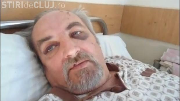Primarul din Mociu l-a zdrobit în BĂTAIE pe un inginer din Palatca. Poliţia Cluj se mişcă cu încetinitorul