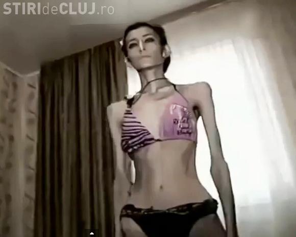 Cea mai slabă femeie din lume are 21 de kilograme