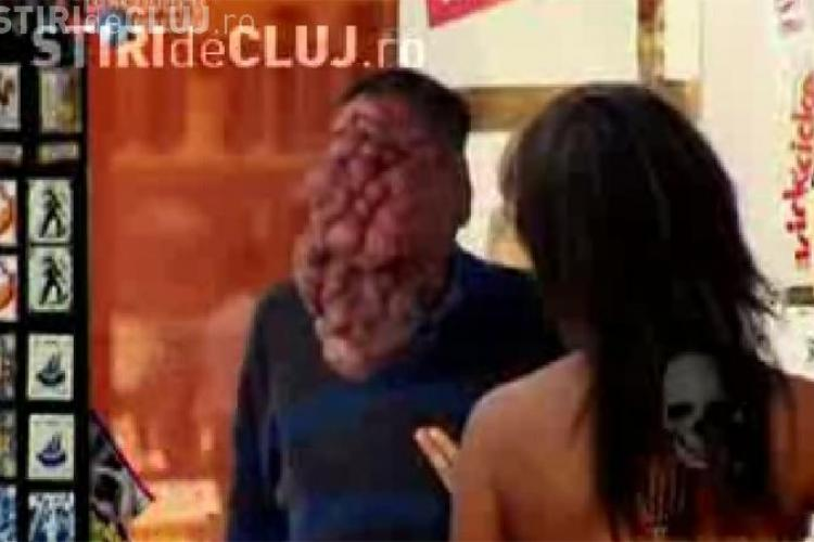 Un portughez are o tumoare uriasa pe fata. Daca nu va fi operat, barbatul risca sa se sufoce - VIDEO - Imagini socante