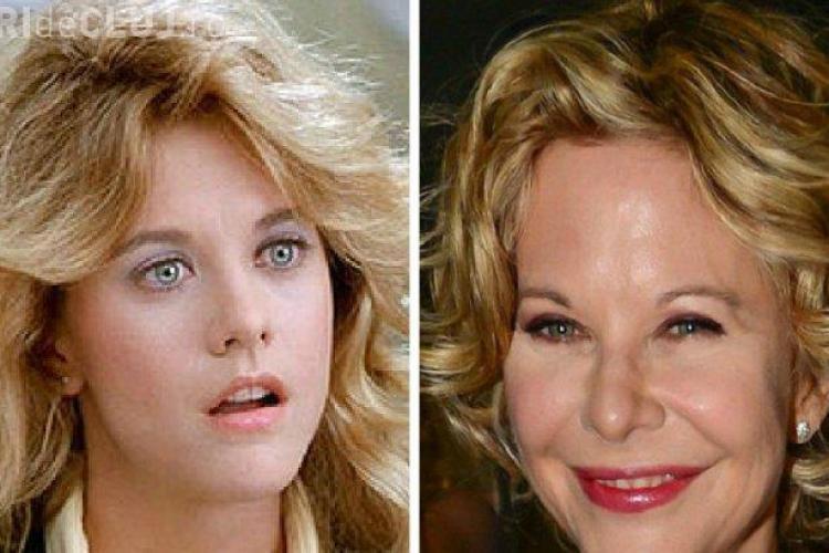 Meg Ryan este desfigurată de atâtea operații estetice