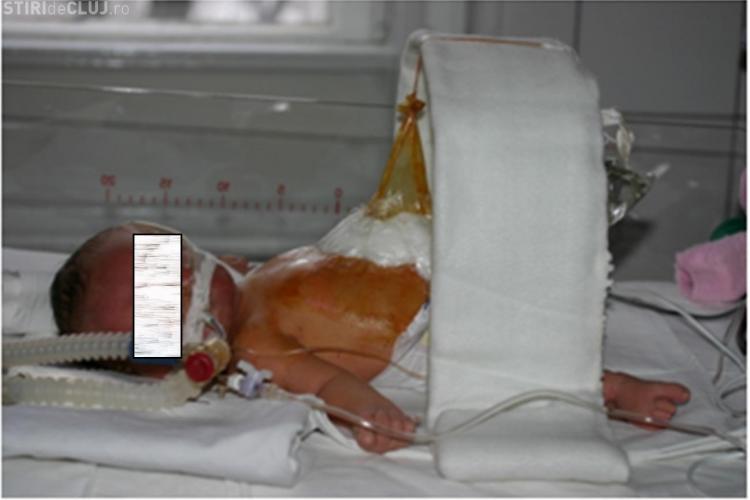 Chirurgul Ciuce a făcut la Cluj operații REVOLUȚIONARE pe copii - VEZI un astfel de caz - FOTO