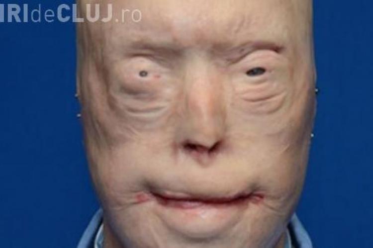 Medicina face minuni. I-a ars fața într-un incendiu, dar cum arată acum, după un transplant de față