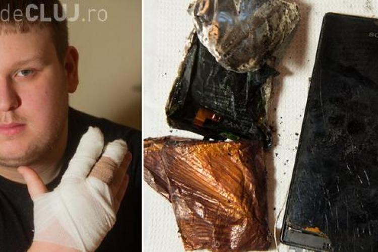 I-a explodat smartphone -ul în mână - FOTO