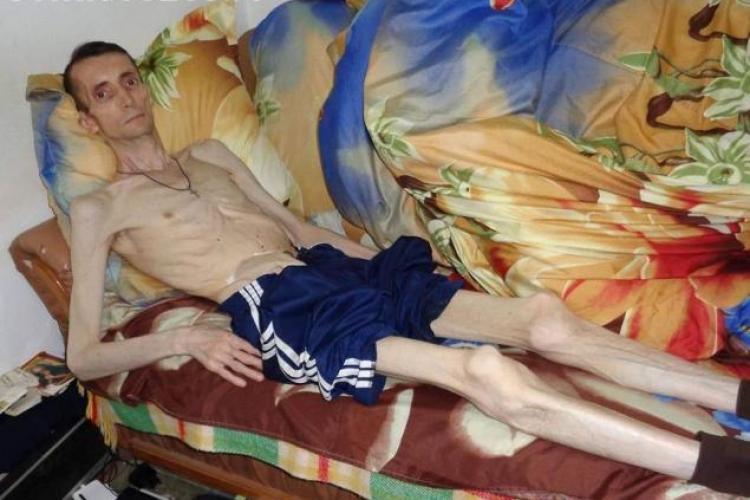 Un român nu a mai mâncat nimic din 2013. Ce dramă trăiește