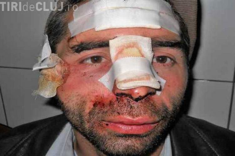 Clujean rupt în bătaie, după ce a făcut o faptă BUNĂ - FOTO