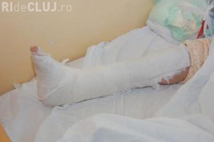 O clujeancă și-a rupt piciorul când cobora din autobuz. Gropile fac victime