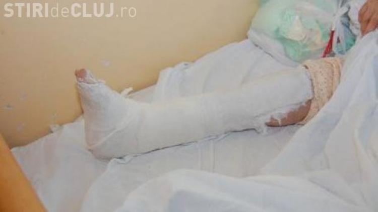 pierde greutatea cu piciorul rupt)