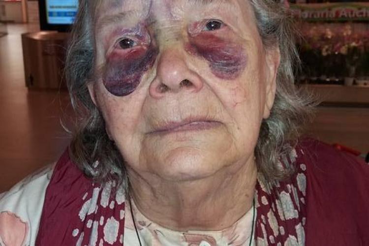 Cluj: Bătrână bătută cu BESTIALITATE de ginere. Are nevoie de ajutor - FOTO