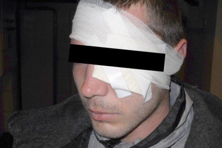 Clujean UMILIT și bătut de doi gealați de față cu fosta iubită, care se amuza copios