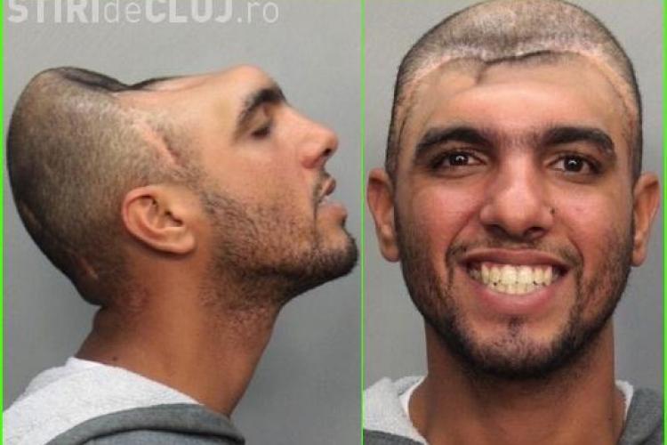 Omul cu jumatate de cap a fost arestat in Miami -FOTO
