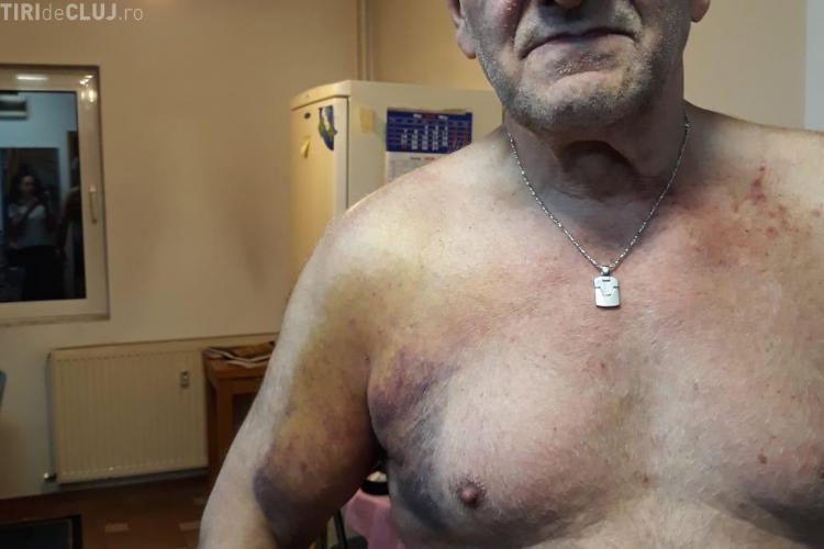 Protestatar: Jandarmii mi-au făcut baie cu gaze. Mi s-a dus un rând de piele - VIDEO