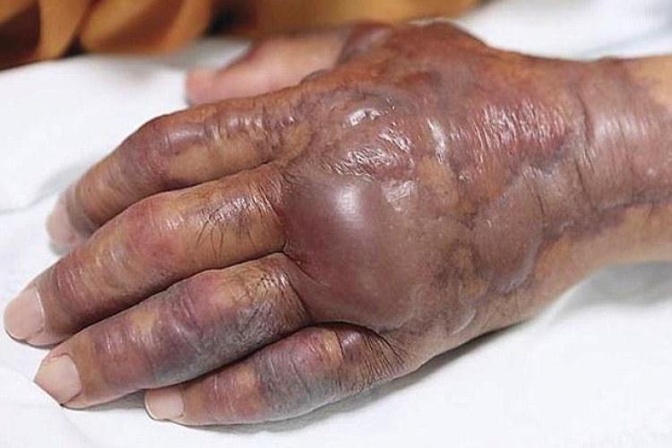 Un bărbat de 71 de ani s-a ales cu mâna amputată după ce a mâncat sushi