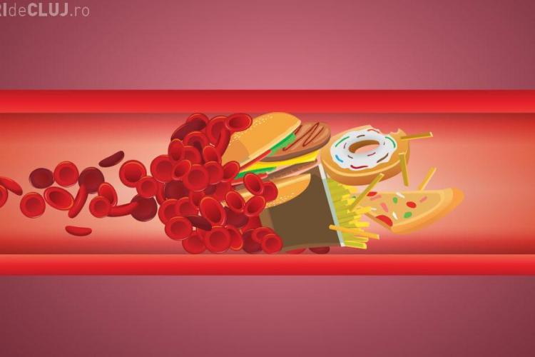10 cauze ale colesterolului crescut