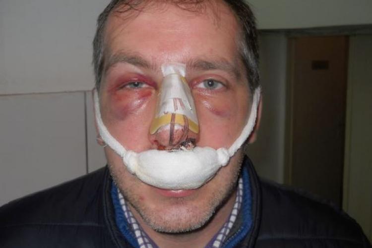 Taximetrist clujean, desfigurat în trafic de un alt șofer cu o lovitură fatală - FOTO