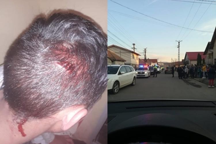 Accident cu scandal în colonia de romi din Florești. Romii acuză că poliția a bătut un copil - VIDEO