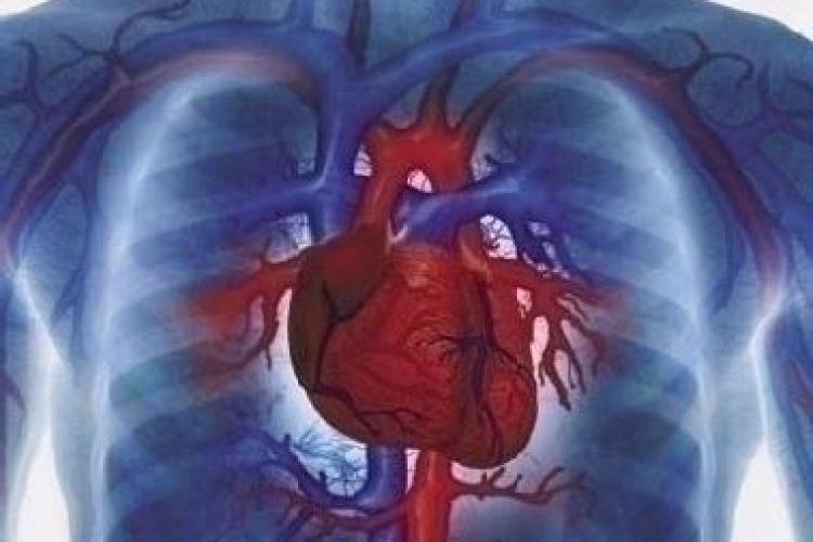 Institutul Inimii din Cluj va face implanturi de inima artificiala