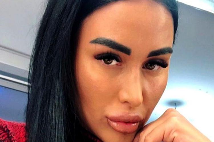 Daniela Crudu, ruptă în bătaie de iubit, nu depune plângere. Cine este iubitul agresiv