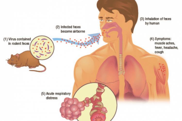 În China a apărut un caz de hantavirus, care este mai periculos ca și coronavirusul