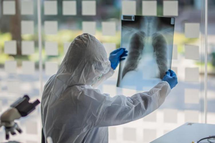 Anticoagulantele folosite la Timișoara au dat rezultate în lupta cu coronavirusul