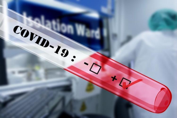 Testare UMF Cluj - Teste RT-PCR pentru determinarea noului coronavirus