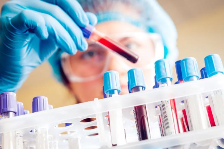 Test rapid PCR produs în Ungaria pentru depistarea Covid-19