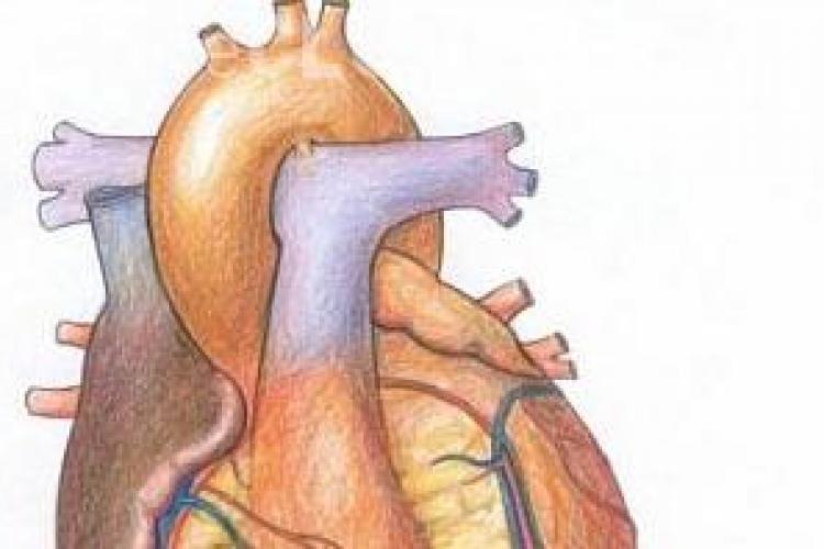 Transplant de inima artificiala la Cluj!