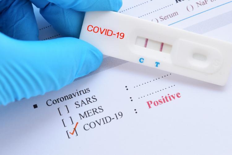 1.975 de cazuri noi de COVID-19 în România. Numărul deceselor se menține ridicat