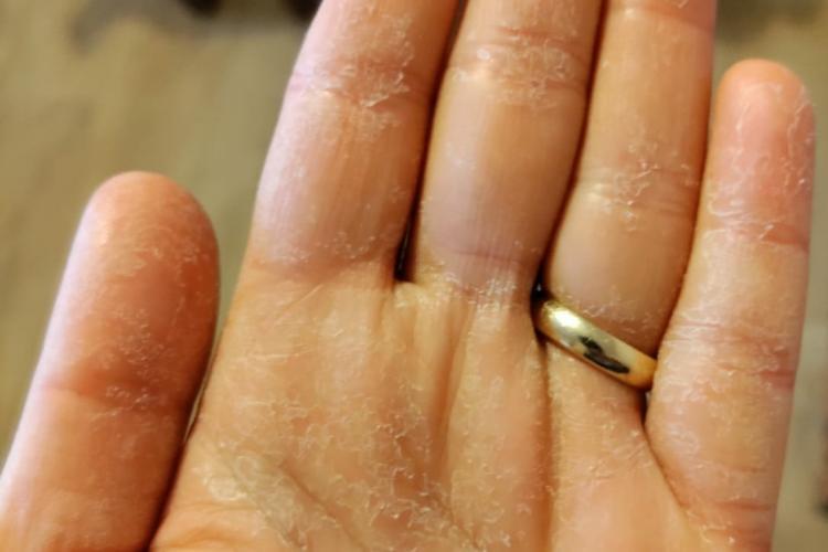 Cluj: Așa arată mâna unui medic de la ATI Cluj, secție COVID. Care este explicația imaginii - FOTO