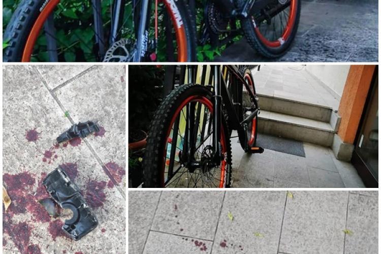Bicicletă furată din Grigorescu! Hoțul a plătit cu sânge furtul: Va rog share masiv să-l găsesc pe nenorocit - FOTO