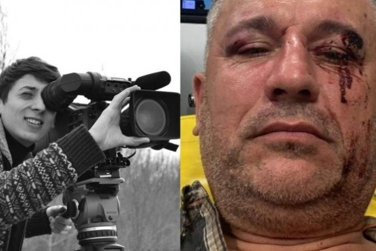 Jurnalistul clujean Mihai Dragolea, bătut crunt de mafia pădurilor sucevene în timp ce filma un documentar despre tăierile ilegale de lemn - FOTO