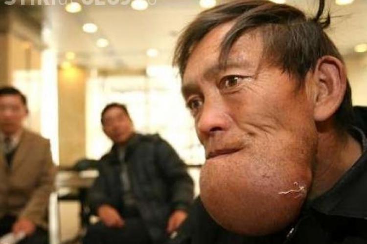 "Unui chinez ii ""explodeaza"" barba - Imagini socante"