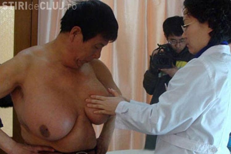 Un chinez este barbatul cu cei mai mari sani din lume - FOTO