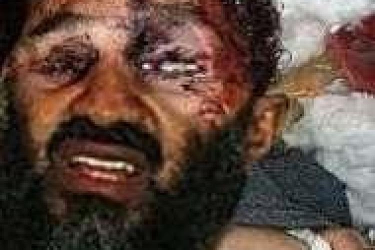 Vezi foto cu Bin Laden impuscat in cap! Posibil trucaj?