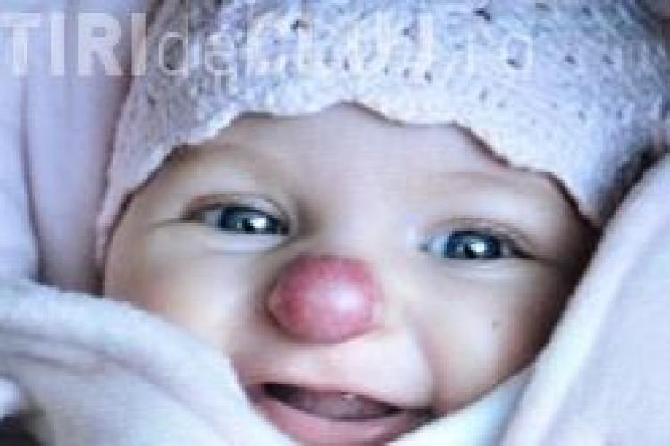 O fetita s-a nascut cu nas de clovn FOTO
