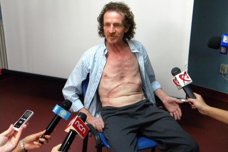 Tumora de 10 kilograme extirpata la Cluj, de profesorul Mihai Lucan! Vezi cum se simte pacientul VIDEO