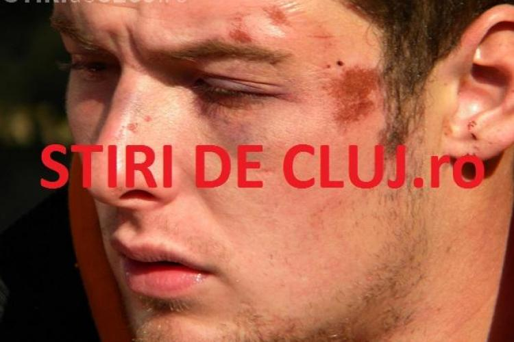 "Politia Cluj sustine ca nu l-a batut pe studentul retinut la Janis la Stuf: ""Sa depuna plangere"""