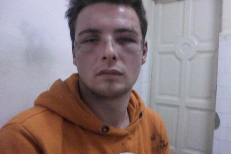 """Studentul de la Jurnalistica, care acuza politia ca l-a batut, a fost si amendat cu 500 de lei pentru """"atitudine ireverentioasa"""""""