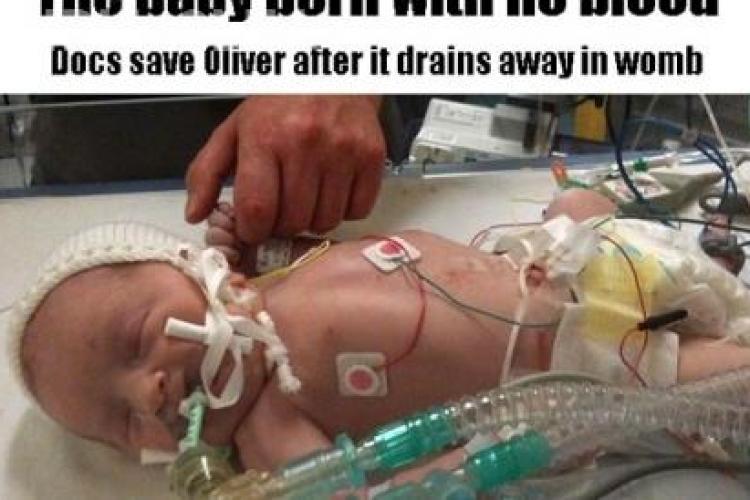 Un bebelus s-a nascut fara o picatura de sange in corp si a supravietuit!