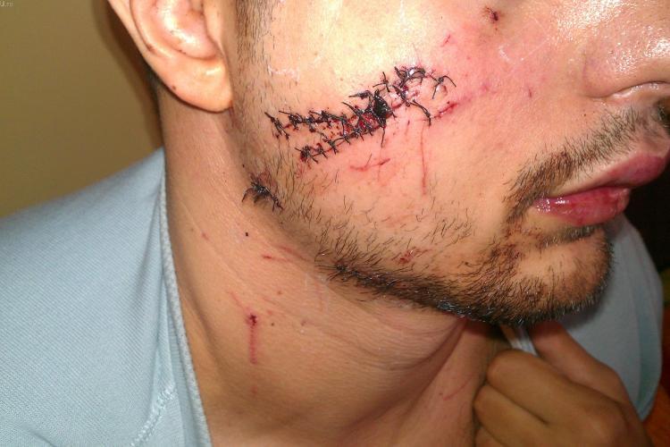 Taiat pe fata in Vertigo de interlopi! Un clujean se lupta de cinci luni si cu Politia si cere sa i se faca dreptate FOTO