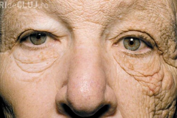 Care este efectul SOCANT al razelor soarelui asupra pielii! Vezi cum a imbatranit un sofer de TIR pe jumatate de fata