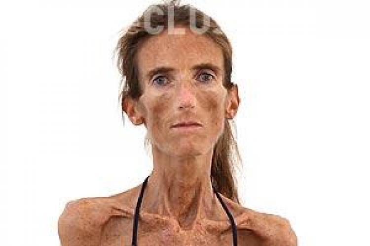 Femeia-schelet susține că este admirată de tinere: Vor să arate ca mine - FOTO ȘOC