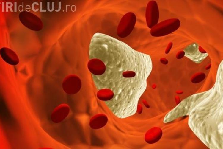 """Pastila """"detergent"""", care curăță arterele de colesterol"""