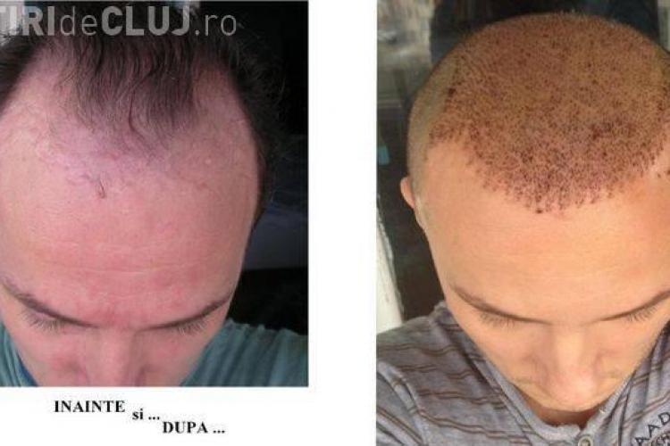 Cum arată Trăistariu după ce și-a implantat păr - FOTO